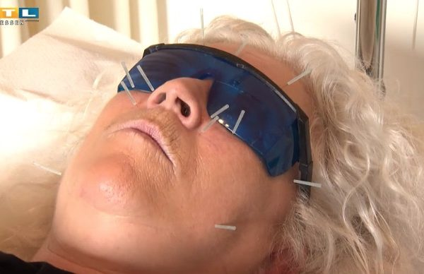 Akupunktur gegen Nasennebenhöhlen