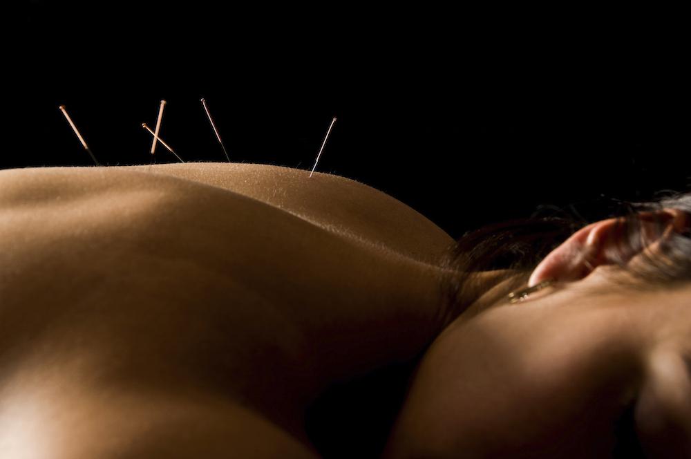 Laserakupunktur in der Orthopädie