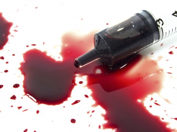 Eigenblutbehandlung