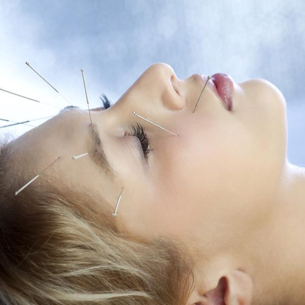 Akupunktur am Kopf